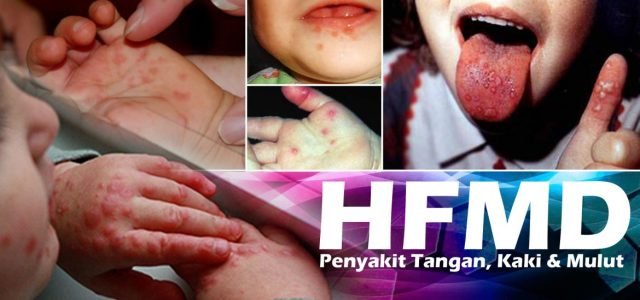 HFMD-1170x550