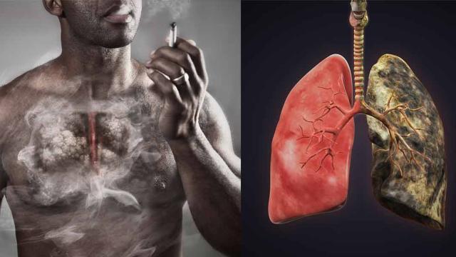 lungsmoking1